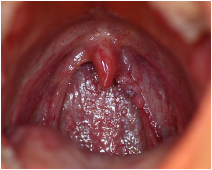 does-hpv-pass-through-oral-sex
